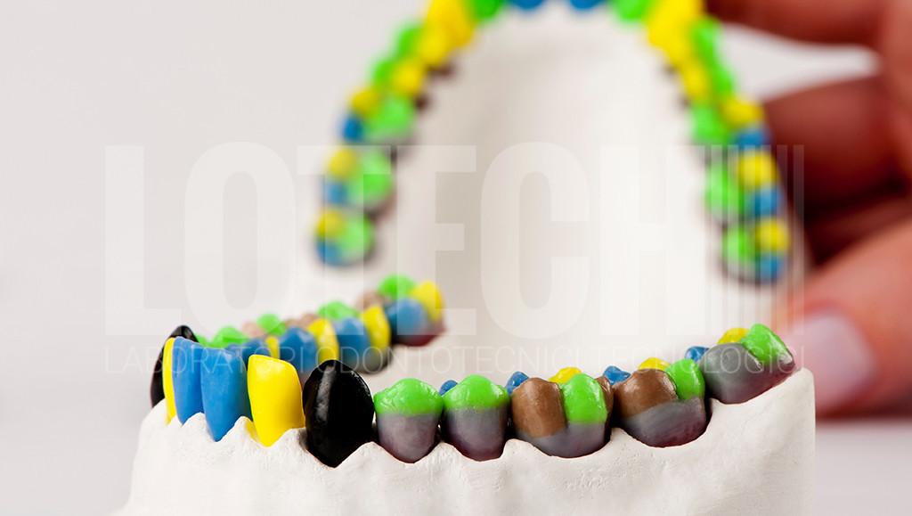 Cera biomedicale per realizzare protesi dentali
